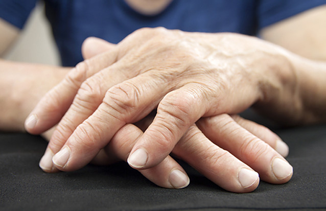 Photo of elderly hands